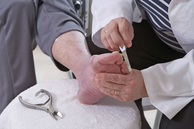 Diabetic Routine Foot Care