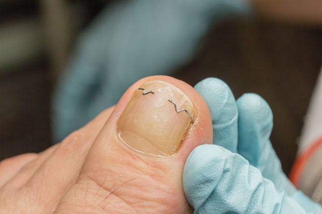 An Ingrown Toenail Is A Painful Condition Of The Toe It Occurs When Sharp Corner Digs Into Skin At End Or Side
