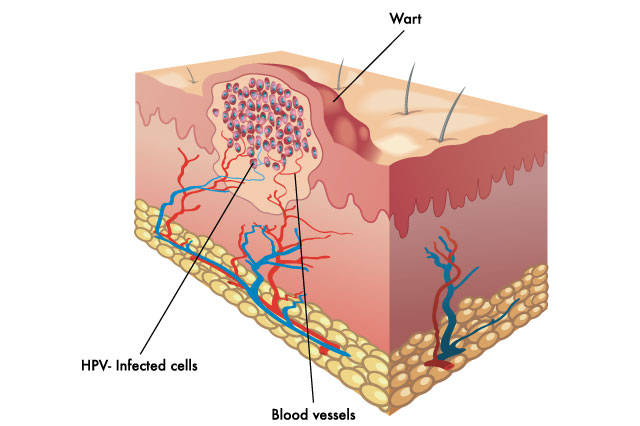 Treatment of Warts