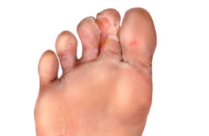 treatment for athletes foot