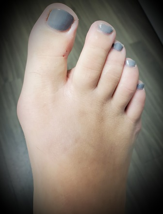 How Are Bunions Treated?