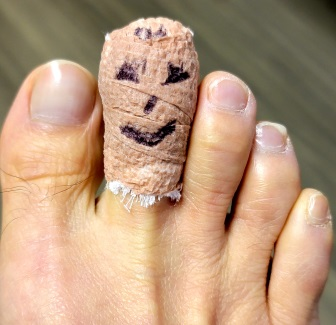 How is an ingrown toenail removed?